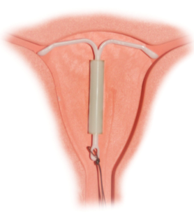 IUD pic 03-12 at 9.24.14 PM